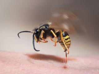 Wasp sting pulls out of human skin. macro
