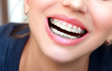 Closeup female smile with ceramic braces teeth.