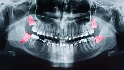 Rosnący ból zębów mądrości na zdjęciu rentgenowskim