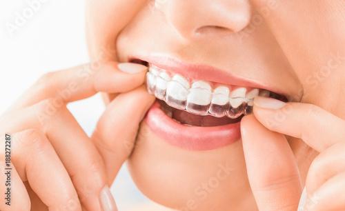 Piękny uśmiech i białe zęby młodej kobiety.