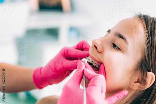 Ortodonta sprawdza aparaty ortodontyczne dziewczynki