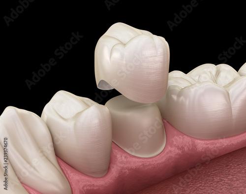Proces montażu zęba przedtrzonowego korony dentystycznej. Medycznie dokładna ilustracja 3D leczenia ludzkich zębów